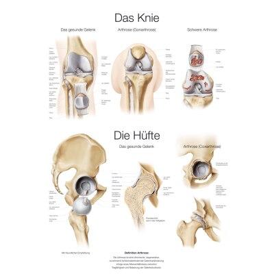 """Lehrtafel """"Das Knie und die Hüfte"""", 70 x 100 cm"""